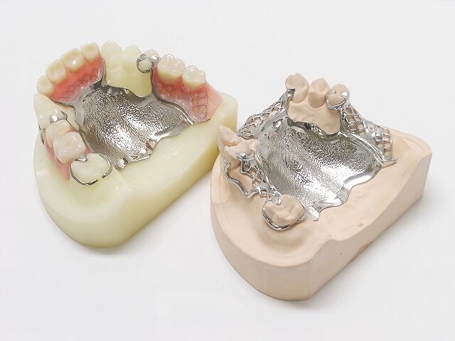 金属床(総入れ歯)