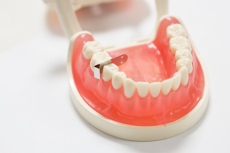 他の歯を傷つけないために